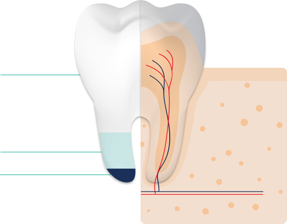 The composition of tooth enamel is 95% minerals, 4% Water, 1% Proteins